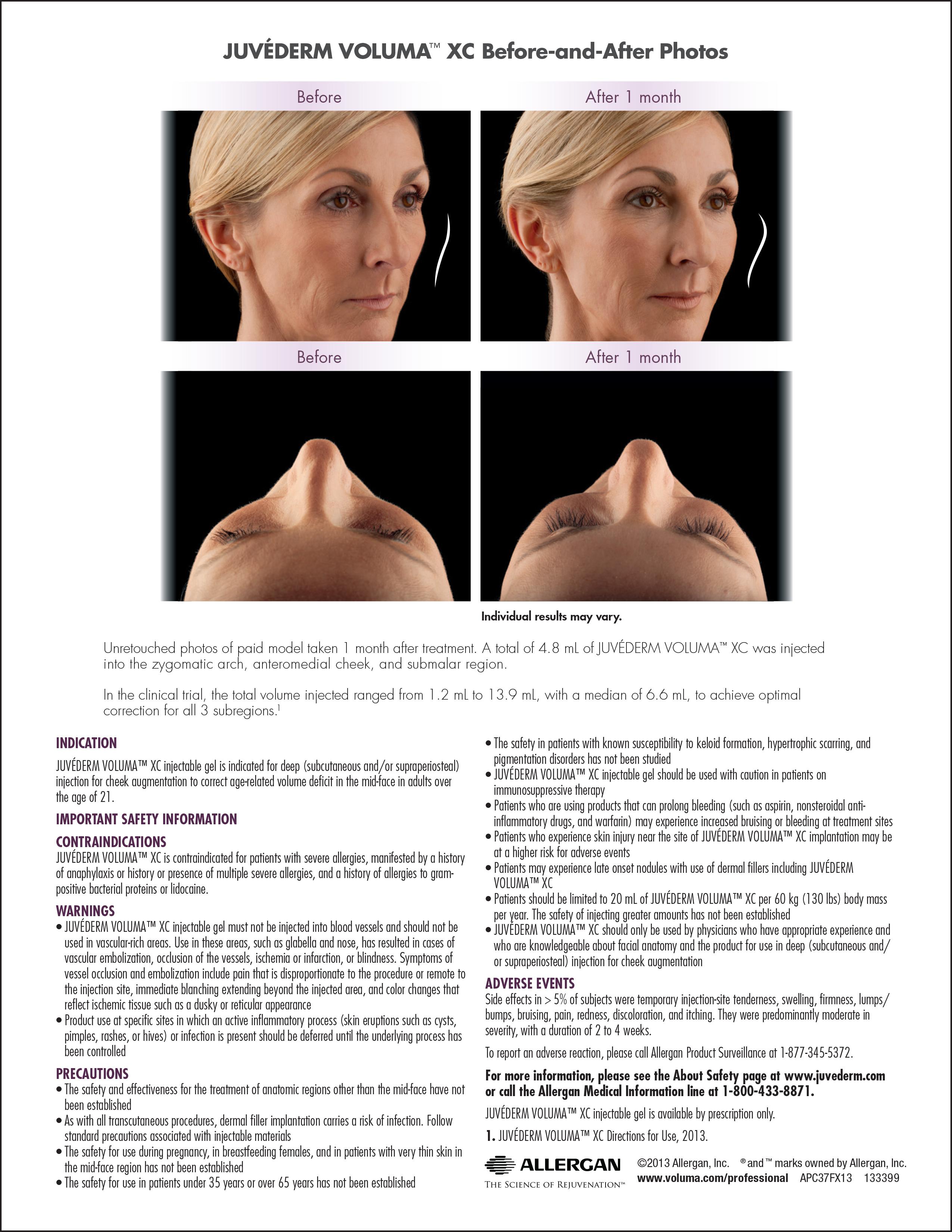 Juvéderm Voluma XC Grosse Pointe, MI   Ferrara Dermatology