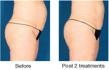 beforeaftervelashape3