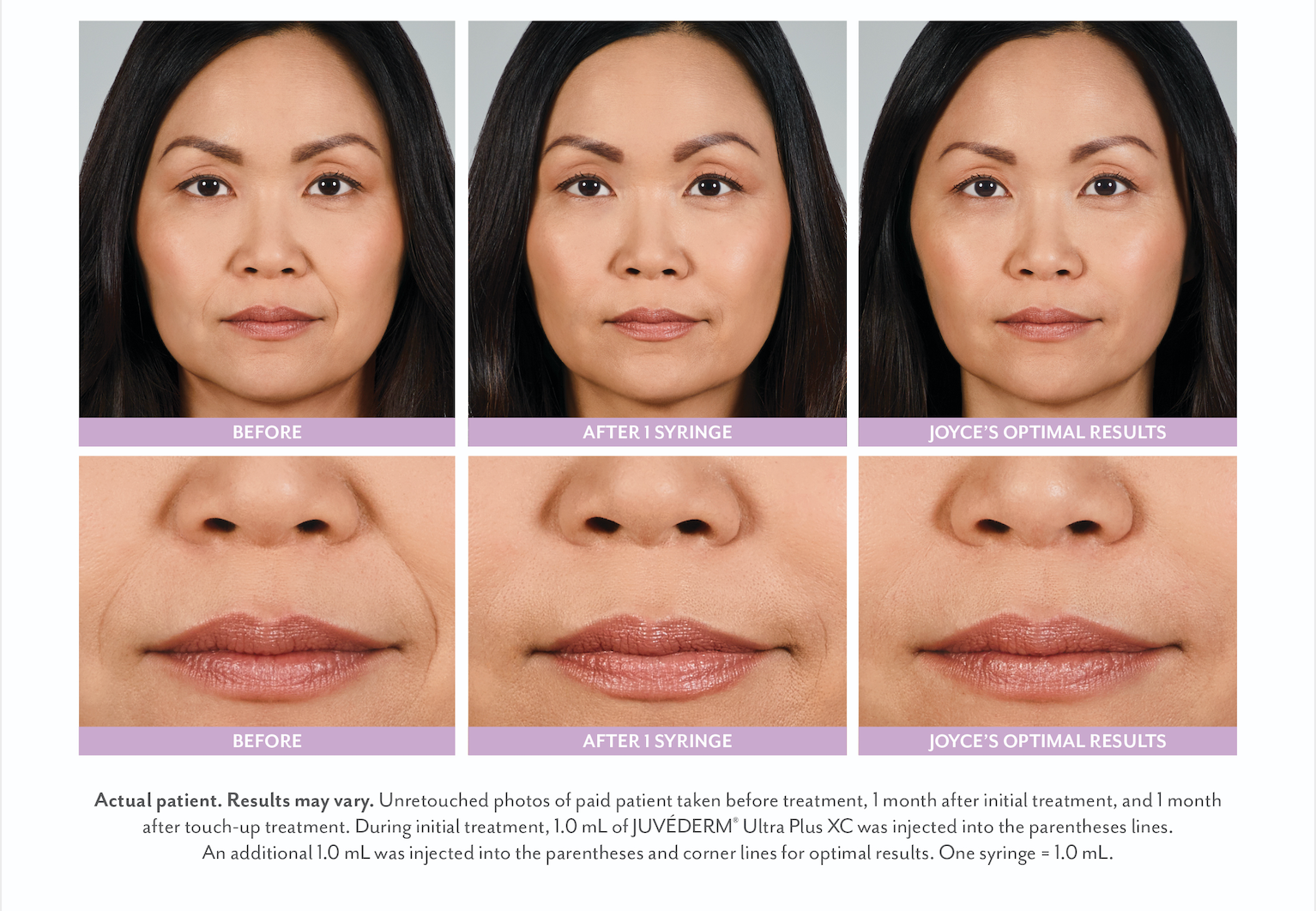results with dermal fillers in the lips