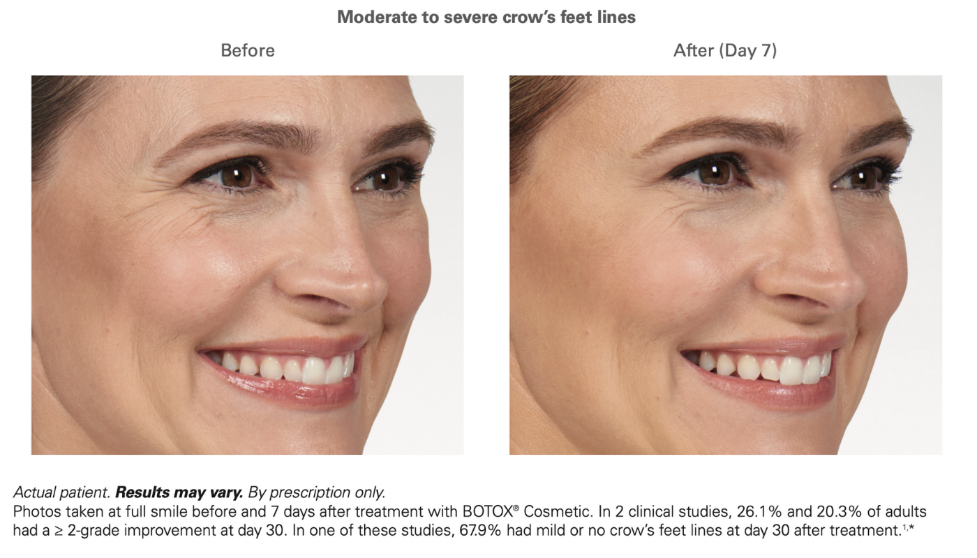 Botox crows feet before and after for women