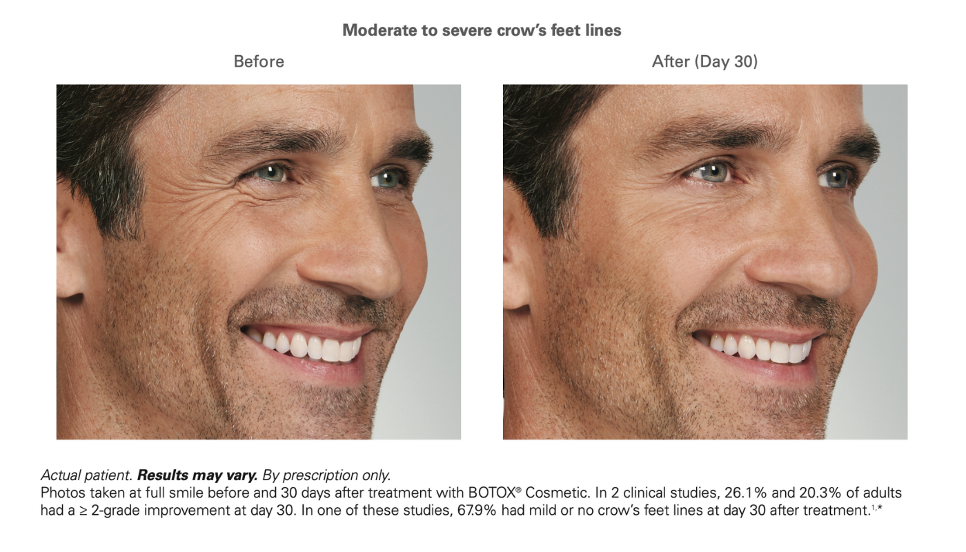 Botox before and after male