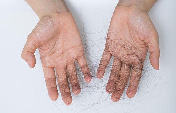alopecia treatment at ferrara dermatology