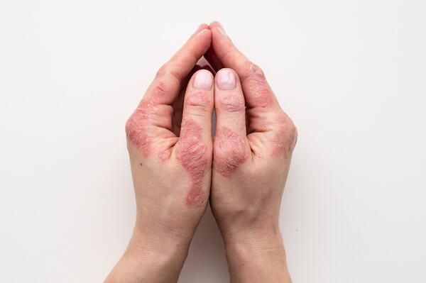 psoriasis treatments available at ferrara dermatology