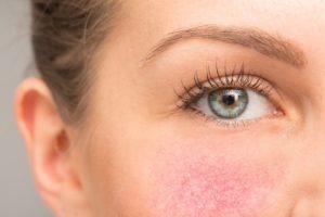 rosacea treatment at ferrara dermatology