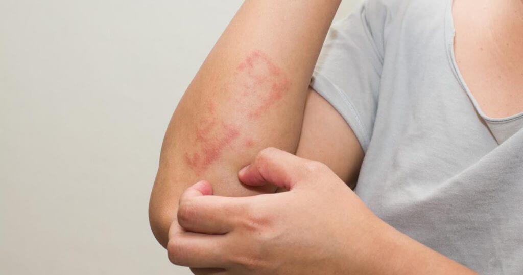 lichen planus ferrara dermatology