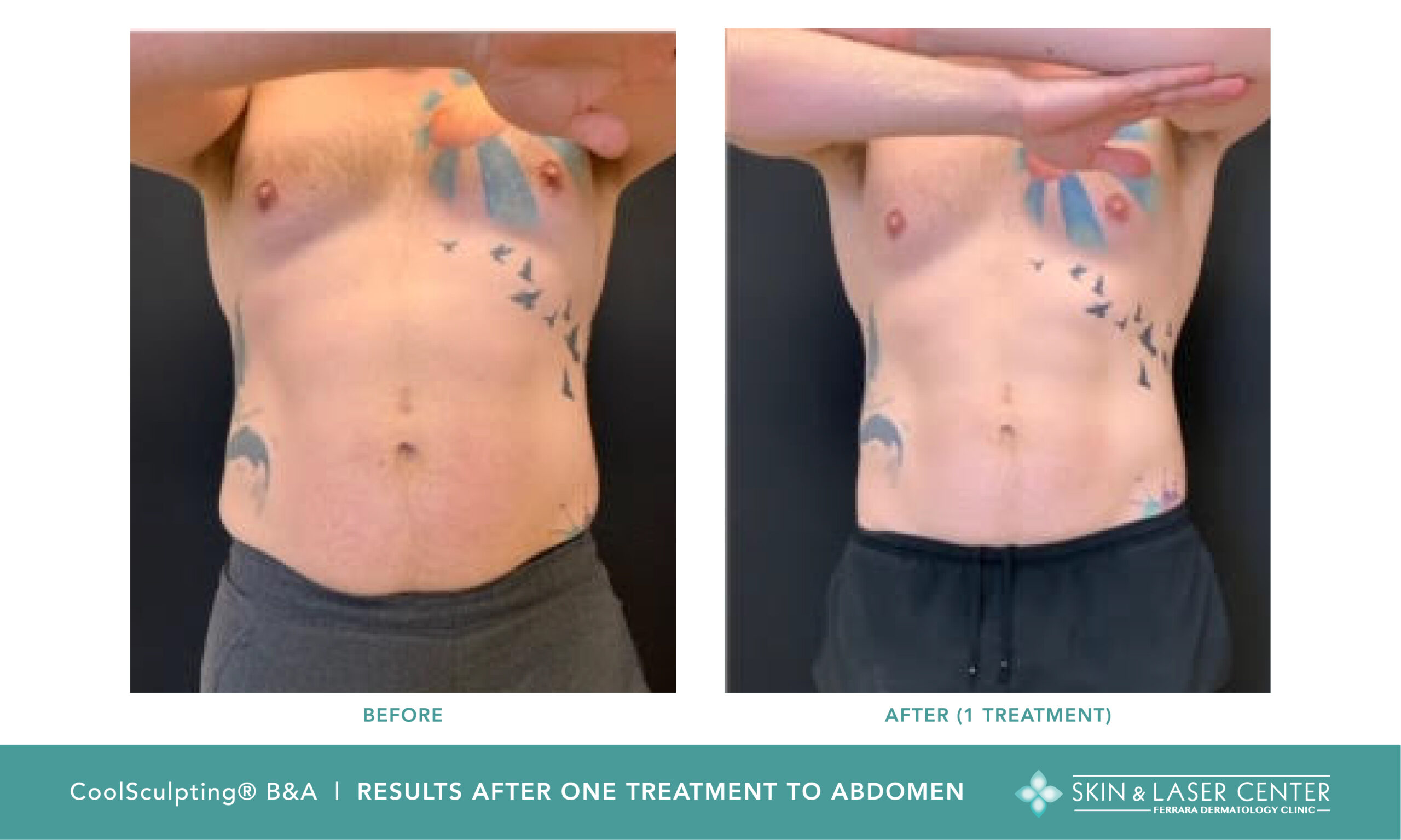 Coolsculpting Before and After Male