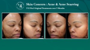 VI Peel Acne Before and After