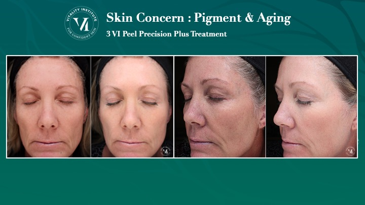 VI Peel Pigment Before and After
