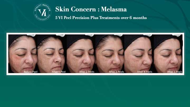 VI Peel Melasma Before and After